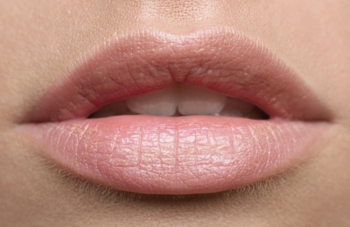 Home-Remedies-for-Black-Lips-700x454